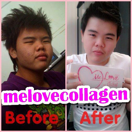 มีเลิฟคอลลาเจน,Melove collagen,รีวิวมีเลิฟคอลลาเจน