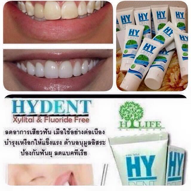 ผลการค้นหารูปภาพสำหรับ ยาสีฟันไฮเด้น
