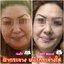 Bye Bye Pimples Dark Spot Corrector (10ml.) New!!! - รอยดำ รอยสิว จางลงอย่างรวดเร็ว thumbnail 5