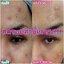 Bye Bye Pimples Dark Spot Corrector (10ml.) New!!! - รอยดำ รอยสิว จางลงอย่างรวดเร็ว thumbnail 9